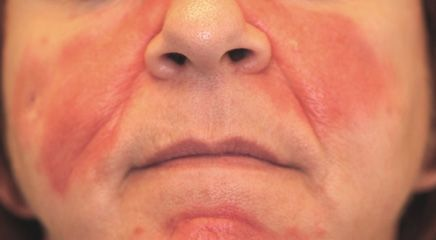 best of Facial rash Unilateral