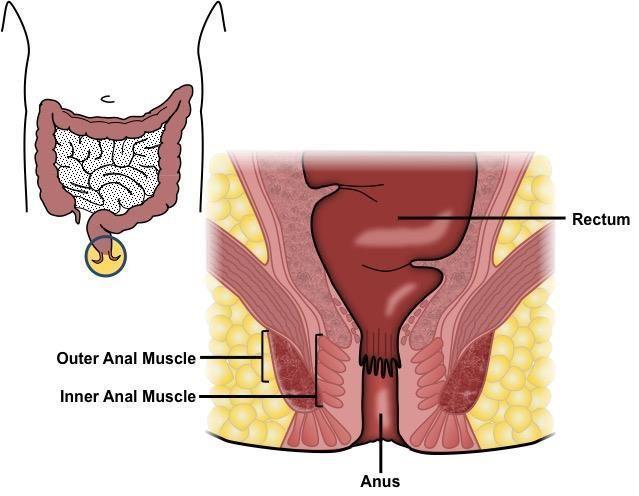 Bump at opening of anus