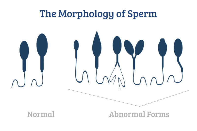 Is holding sperm durring ejaculation unhealthy