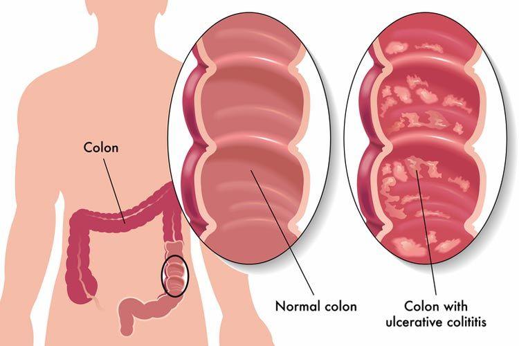 Sperm ulcerative colitits