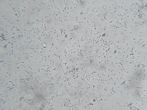 Sperm under microscope video