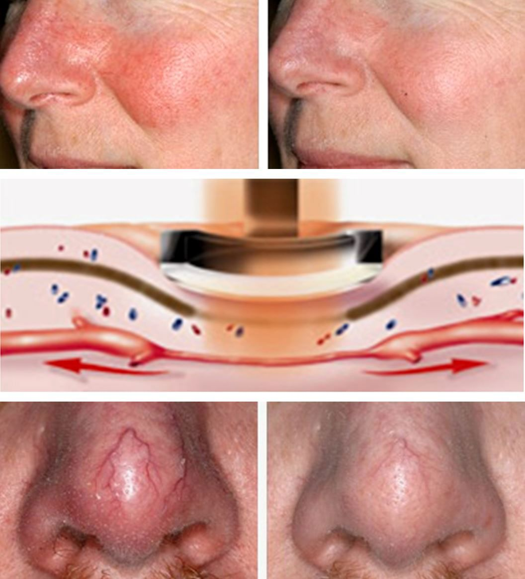 best of Varicose veins causes Facial