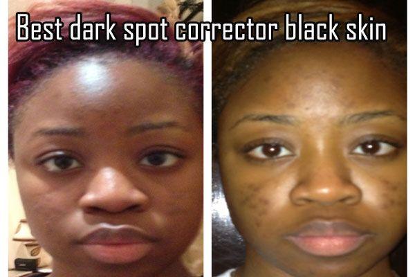 Sgt. C. reccomend Best facial sun spot remover