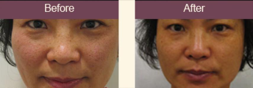 best of Remover sun spot Best facial