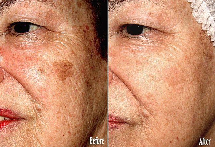 Best facial sun spot remover