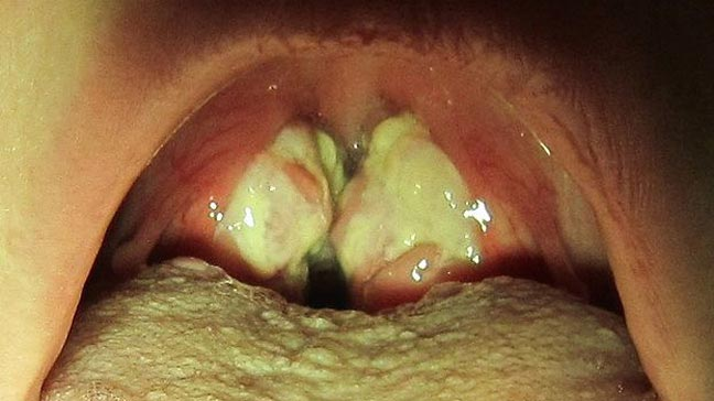Isis reccomend Strep throat symptoms in adults