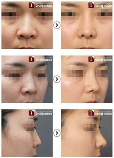 Nasal and facial plastic cosmetic surgery institute and laser center