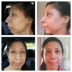 best of And laser cosmetic facial and plastic center Nasal institute surgery